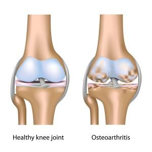 Osteoarthritic knee