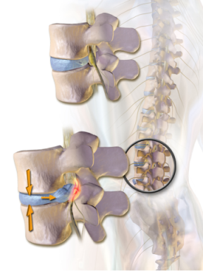 Herniated disc, disc injuries